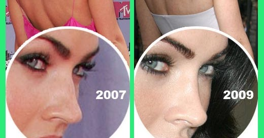 Plastic Surgery Before And After Megan Fox Before And After