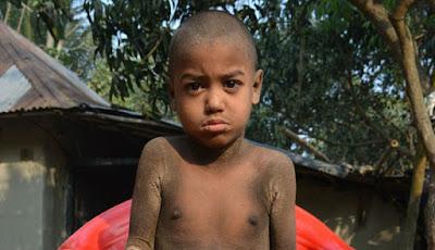 Kondisi Penyakit Langka, Anak Ini Berubah Menjadi Batu