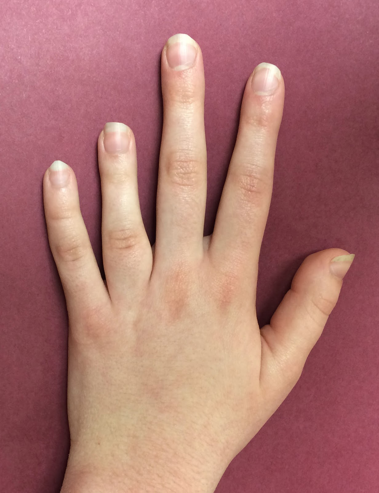 Congenital Hand And Arm Differences: Patient Presenting With A Short 4th Metacarpal