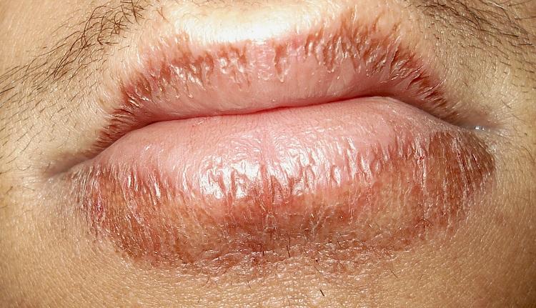 O que é Dermatite Labial ou Eczema no Lábio?