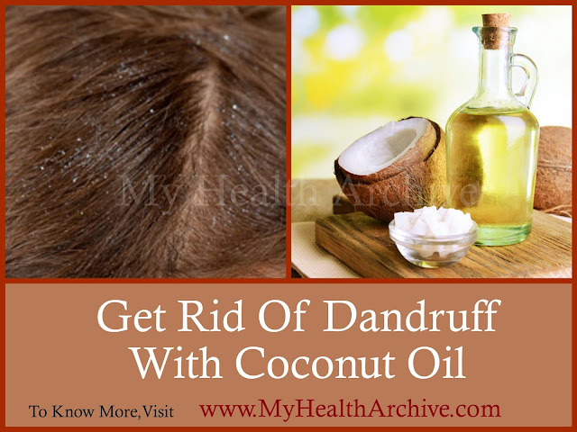 how to get rid of dandruff with coconut oil my health archive. Black Bedroom Furniture Sets. Home Design Ideas