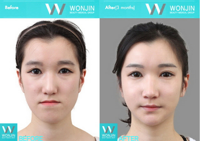 짱이뻐! - Before and After Photos Korean Face Contouring