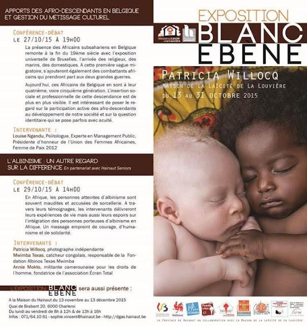 Blanc Ebène, expo-photos, Patricia Willocq, L'albinisme, rdc, fondation albinos Mwimba Texas, Écran Total, La Province de Hainaut, be, picardie