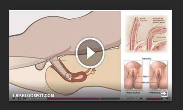 Endometriosis And Severe Sex Pain Treatments