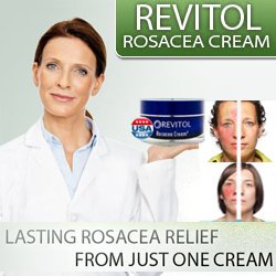 Over The Counter Rosacea Treatments Over The Counter Rosacea