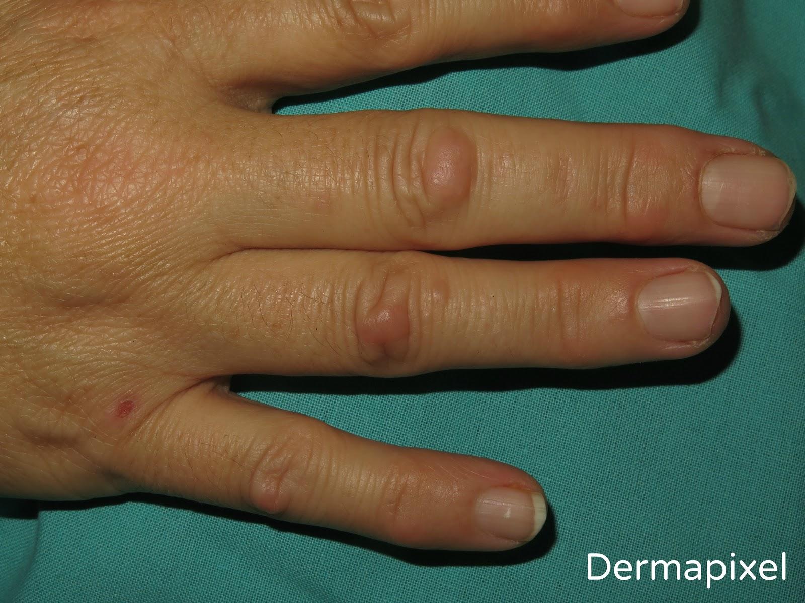 bultos en los dedos de la mano