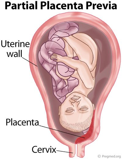 marginal placenta previa - Placenta Previa Symptoms Causes and Treatment