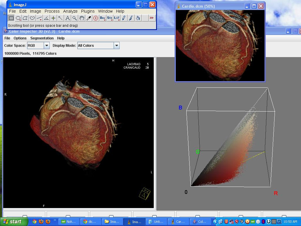 😍 Radiant dicom viewer 32-bit crack | RadiAnt DICOM Viewer