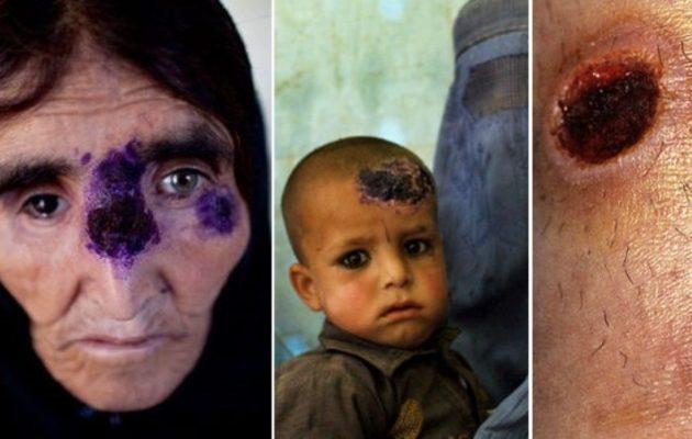 Σαρκοφάγα νόσος «το ΄σκασε» από το Ισλαμικό Κράτος και εξαπλώνεται μέσω προσφύγων(Σκληρες εικονες)