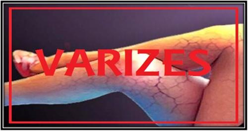 699056147fd Varizes são veias dilatadas e deformadas, de coloração púrpuro-azulada, que  surgem ao longo das pernas e podem causar dor e inchaço.
