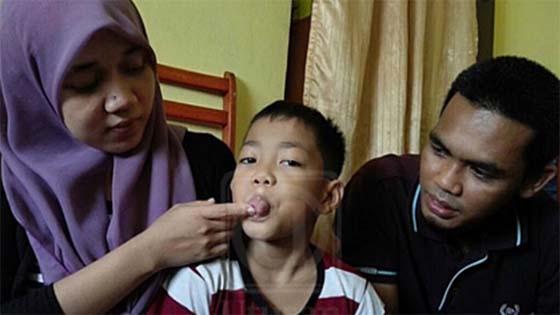 Adik Alif Cerita Kisah Sebenar Dipaksa Potong Lidah di Sekolah
