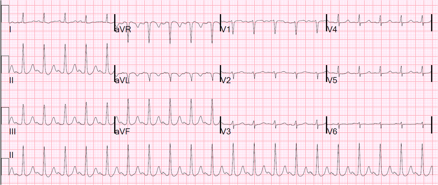 Dr  Smith's ECG Blog: Low Voltage in Precordial Leads