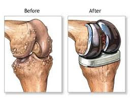 Total Knee Replacement Surgery Delhi