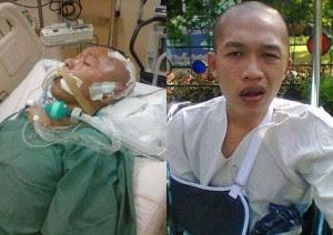 testimoni penderita tumor