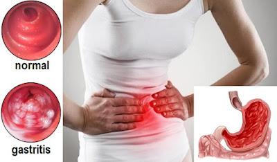 Pengertian, Jenis, Gejala & Faktor Penyebab Gastritis