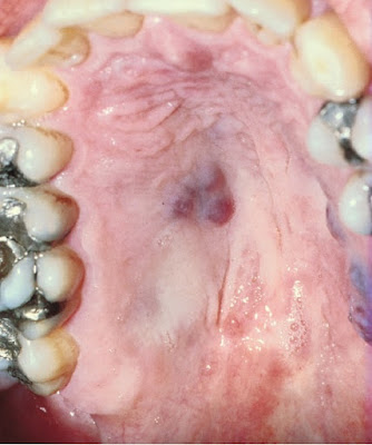 Kaposi sarcoma of the palate in AIDS