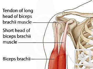 biceps tendinitis gyógytorna