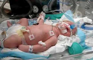 DOCS: Baby boy first marijuana overdose death...