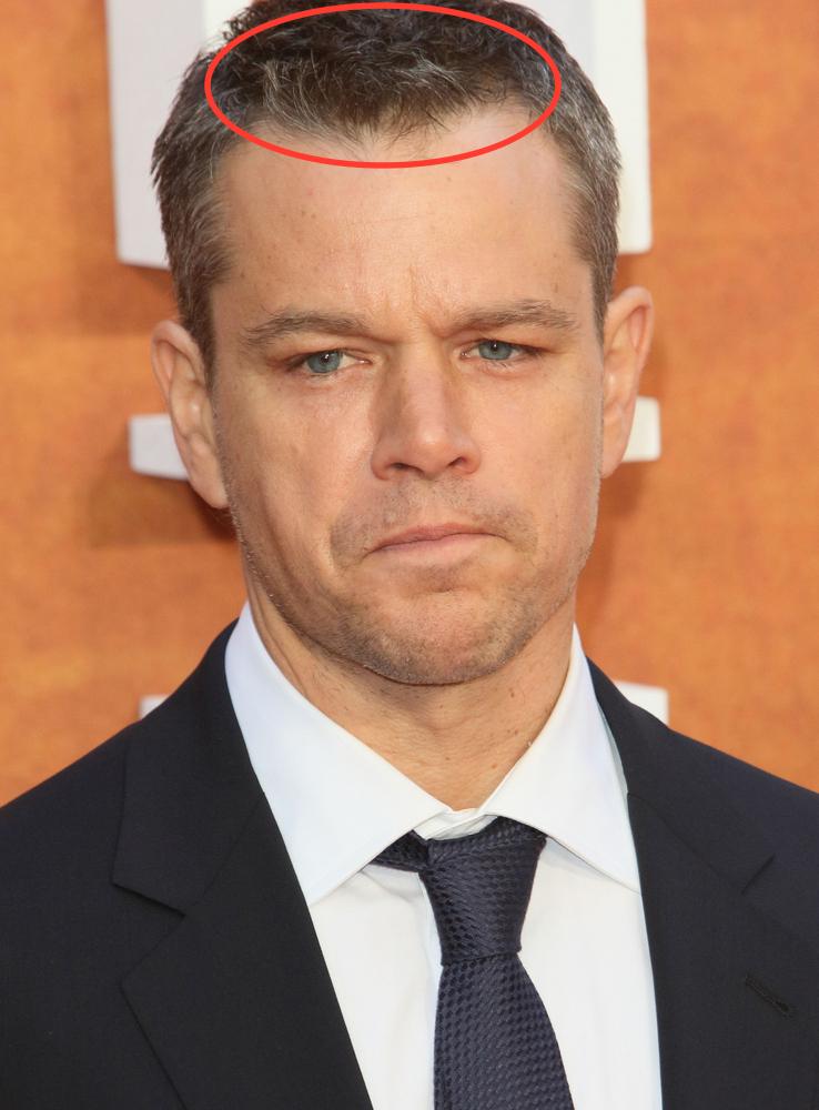 Celebrity Hair Loss: Is Matt Damon Treating His Hair Loss?