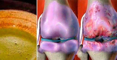 This Recipe Has Made All Doctors Crazy, It Heals Your Knees And Reconstructs Bones And Joints Immediately