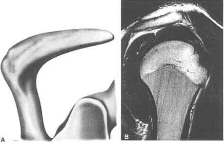 Informe radiológico: Tipos morfológicos de acromion