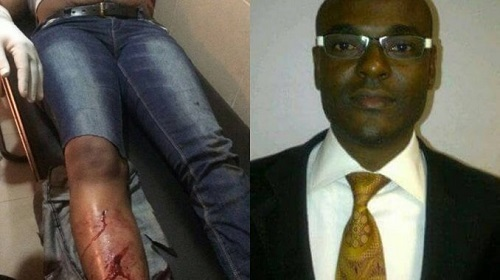 Zenith Bank Top Staff Accused of Breaking His Wife's Leg Finally Shares Shocking Details of What Truly Happened (Photo)