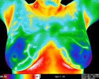 Termografi, Tıpta termografik görüntüleme