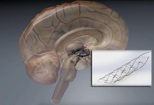 حَبْلٌ شوكيّ «إلكترو- حيويّ» يُساعِد ذوي الإعاقة على الحركة