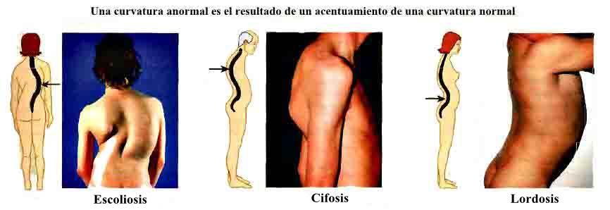 Anatomía del Tórax malformaciones columna vertebral