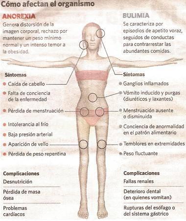 Sintomas y consecuencias de la bulimia nervosa