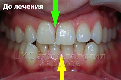 Несоответствие средней линии верхней и нижней челюстей