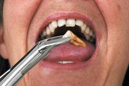 Temps de récupération des dents de sagesse