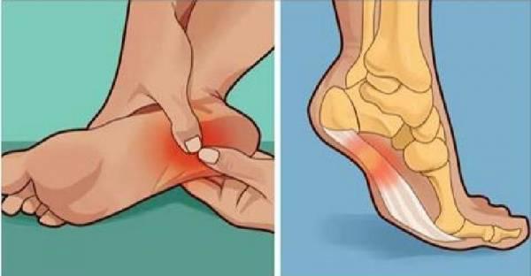 Awas ! Jika Telapak Kaki Anda Sakit Ketika Ditekan, Mungkin 3 Bahaya Kesehatan Ini Sedang Anda Alami Tanpa Disadari..