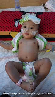 Gambar bayi Aina semasa menerima rawatan di Hospital Putrajaya