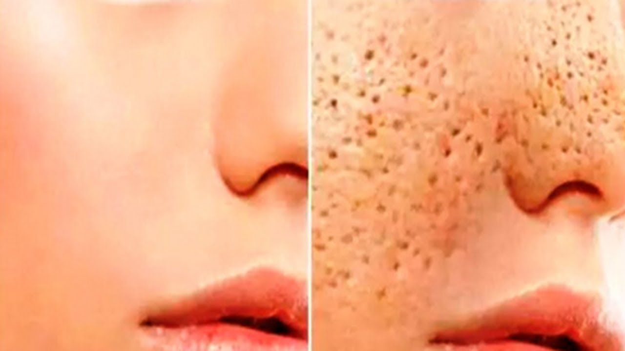 The Path We Live: How To Reduce The Pores On The Face ...