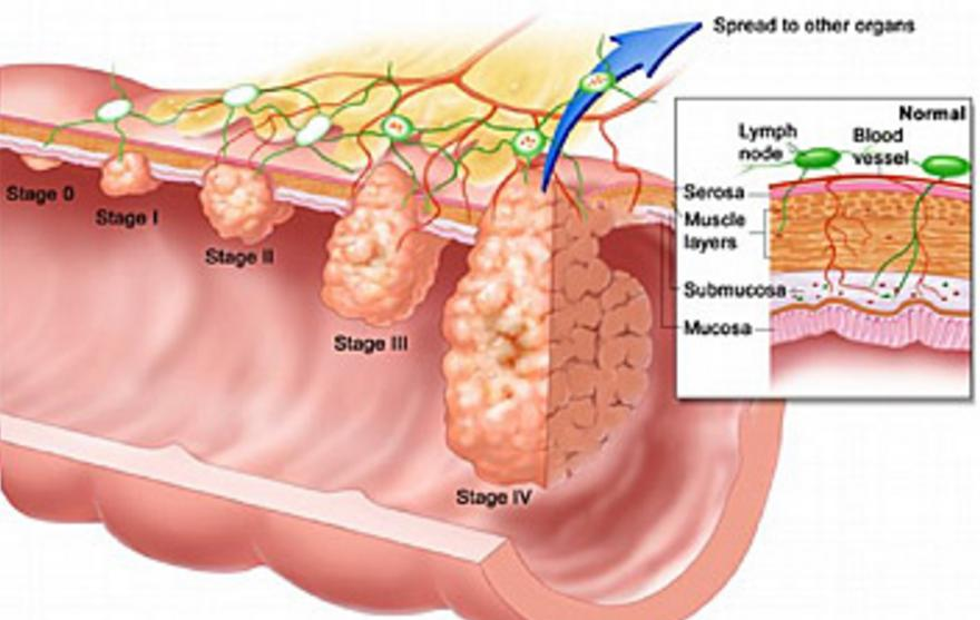 How Bad is Stage 3 Cancer in The Lymph Nodes