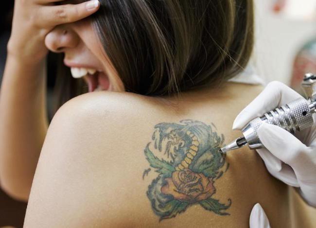 Lo Más Económico   Borrar Tatuajes Naturalmente Sin Dolor 2