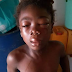 Omg! Photo of 8-year-old girl badly beaten by her guardian