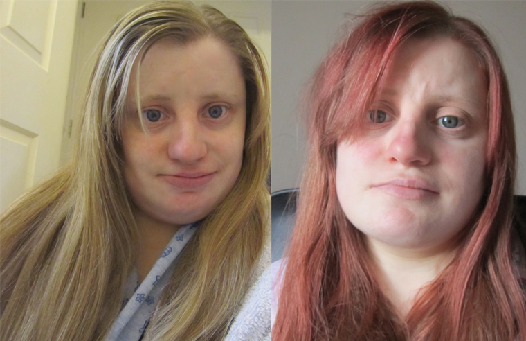 From blonde to red hair anna nuttall i so prefer having my hair colour red to a blonde it suit my skin tone better and if im honest i think its red hair hair urmus Images