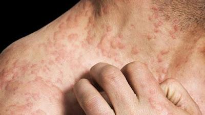 Cara alternativ mengobati penyakit kanker kulit