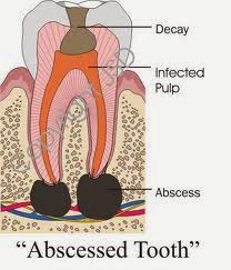 Tooth Abscess Symptoms, Remedies, Complications & Prevention  |Abscessed Tooth Complications Signs