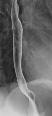 『胃透視検査』検査の概要とながれについて解説