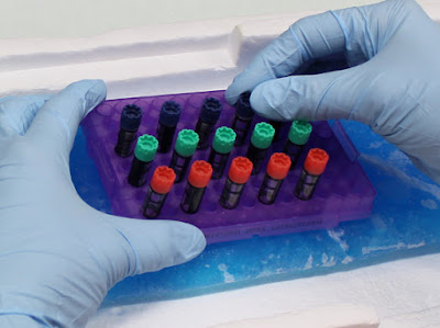 New finding: Biobank storage time affects blood test results