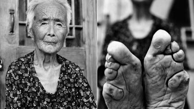 Lotus Feet, Tradisi Ekstrim Untuk Bentuk Yang Cantik Dengan Cara Yang Pasti Membuat Kamu Ngilu