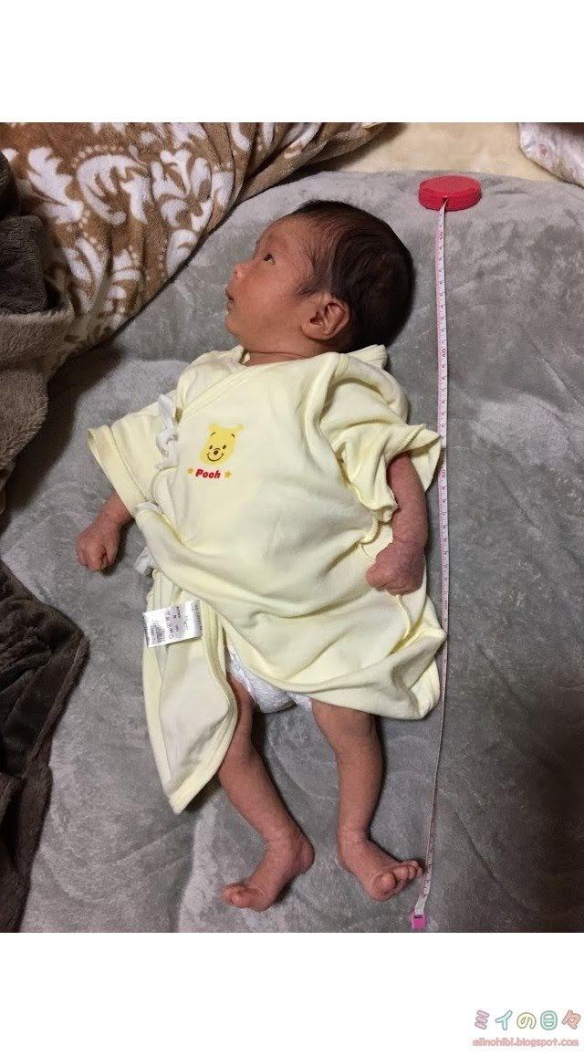 赤ちゃんの生理的o脚はいつまで ミイの日々