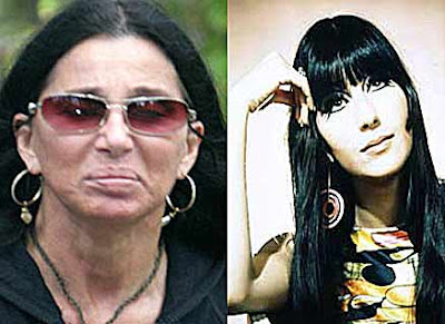 Cher Plastic Surgery Before And After Nose Job And Breast
