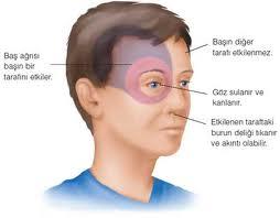 7 Gejala Migren