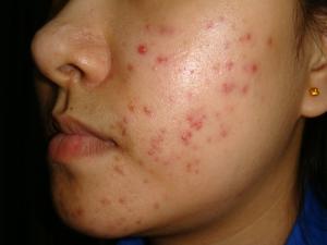 Acne Vulgar Acne Vulgaris Causes And Symptoms