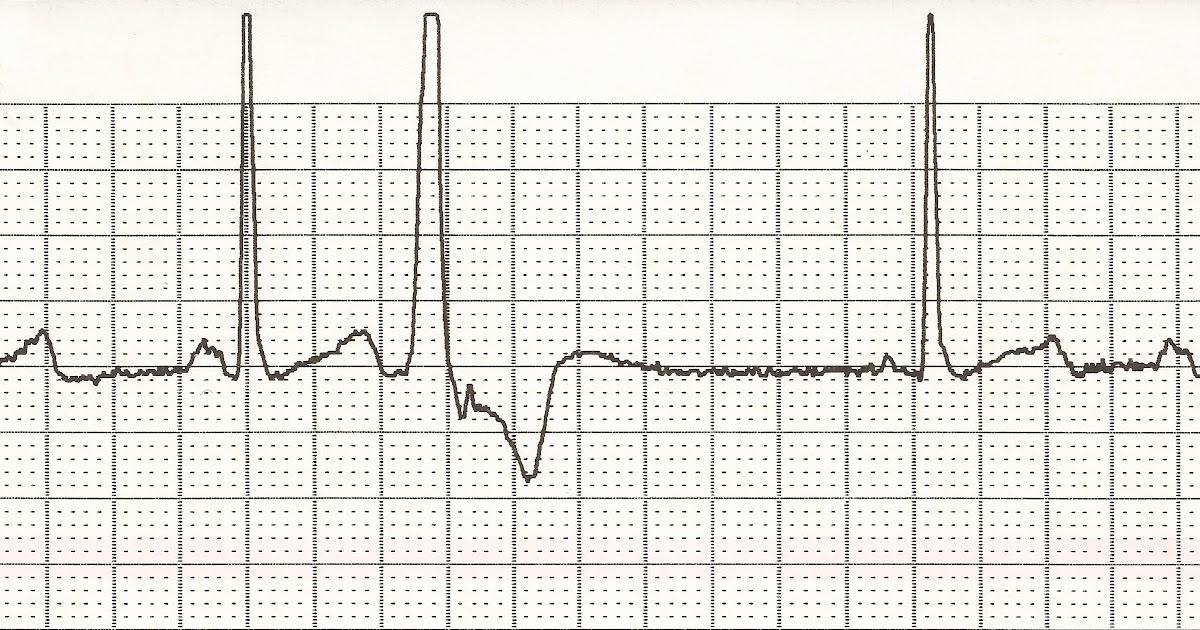 Float Nurse: EKG Rhythm Strips 24: Ectopic beats