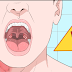 HOW TO GET RID OF THROAT INFECTIONS NATURALLY IN ONLY 4 HOURS